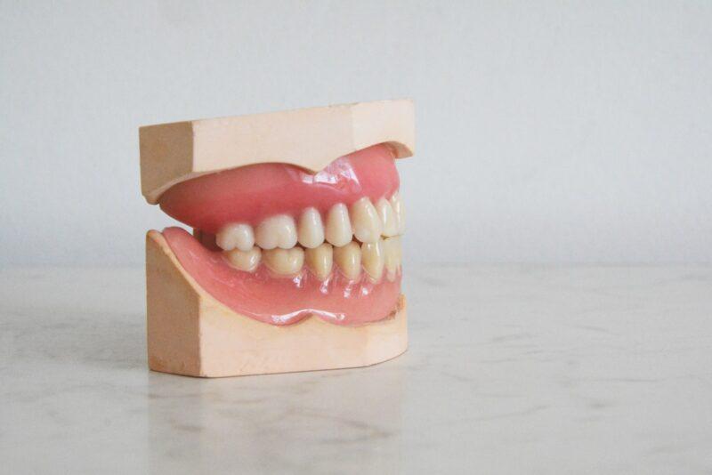 קורס סייעת לרופא שיניים
